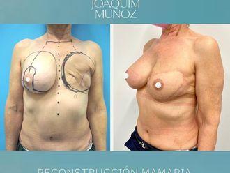 Reconstrucción mamaria-787207