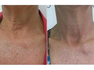 Antes y después Plasma Rico en Plaquetas (PRP)