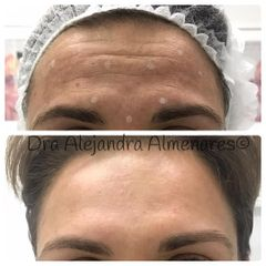 Bótox - Dra. Alejandra Almenares