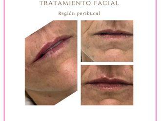 Rellenos faciales-789566
