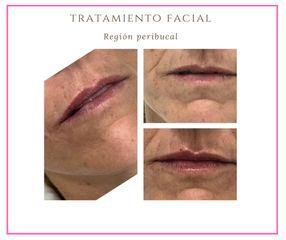 Rellenos faciales - Dra. Alejandra Almenares