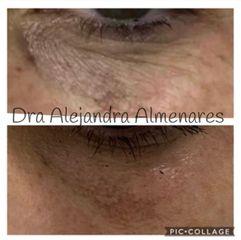 Eliminación de ojeras - Dra. Alejandra Almenares