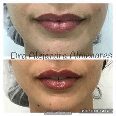 Aumento de labios - Dra. Alejandra Almenares