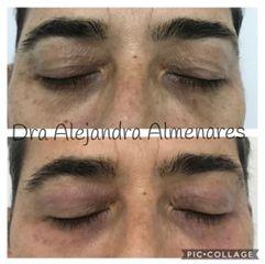 Blefaroplastia sin cirugía - Dra. Alejandra Almenares