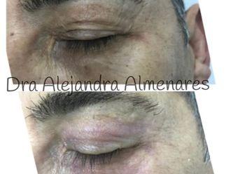 Blefaroplastia sin cirugía - 792927