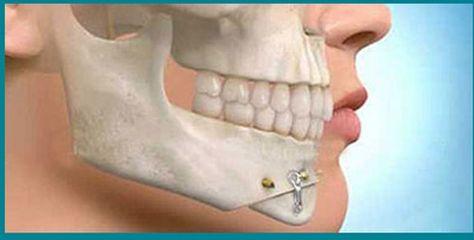 Cirugía-maxilofacial - Clinicas Alsana Ponteareas
