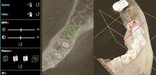 Implantología-avanzada - Clinicas Alsana Ponteareas