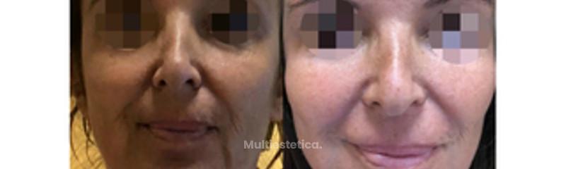 antes y después hilos double needle .