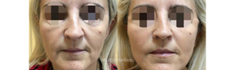 antes y después hilos double needle