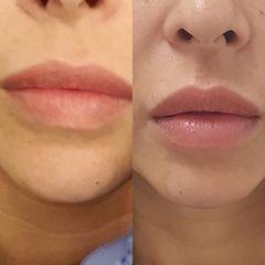 Aumento de labios - Doctor Esquide