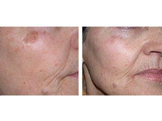 Antes y después Tratamiento anti manchas