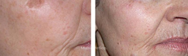 Tratamiento anti manchas