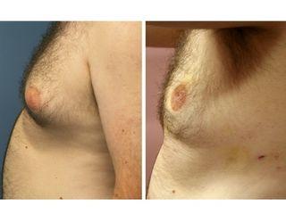 Antes y después Lipoláser