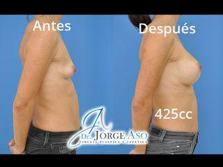 Antes y después Aumento de pecho con implantes de gota de 425 gramos