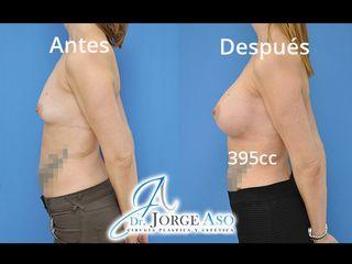 Antes y después Aumento de pecho con implantes anatómicos de 395 cc