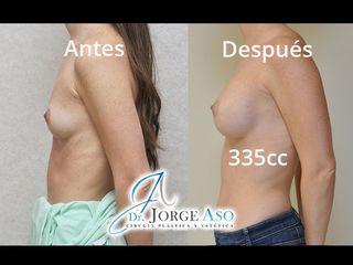 Antes y después Aumento de pecho con implantes anatómicos de 335cc