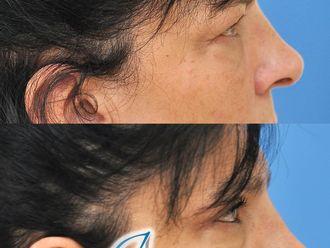 Blefaroplastia-791023