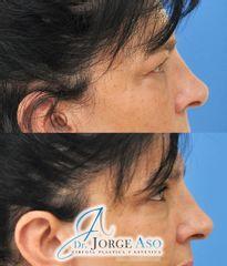 Blefaroplastia - Dr. Jorge Aso