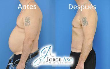 Abdominoplastia - Dr. Jorge Aso