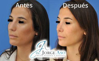 Rinoplastia - Dr. Jorge Aso