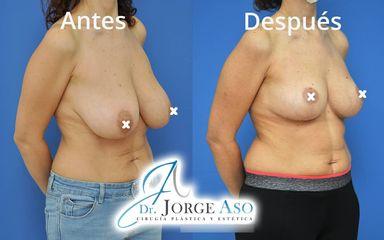 Reducción de senos - Dr. Jorge Aso