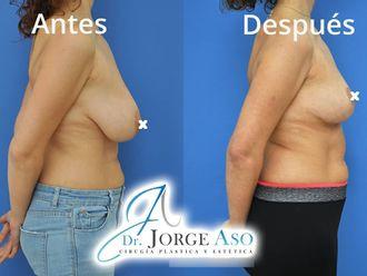 Reducción senos - 792356