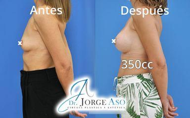 Aumento de pecho - Dr. Jorge Aso