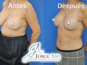 Reducción senos - 792367