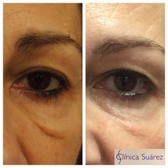 Antes y después Blefaroplastia - Clínica Suárez