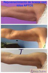 Antes y después Rejuvenecimiento brazo - Clínica Suárez