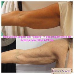 Antes y después Hilos tensores - Clínica Suárez