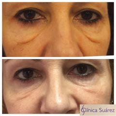 Antes y después Blefaroplastia sin cirugía - Clínica Suárez