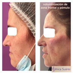 Antes y después Bótox - Clínica Suárez