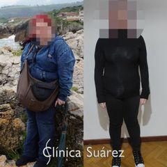 Balón gástrico - Clínica Suárez