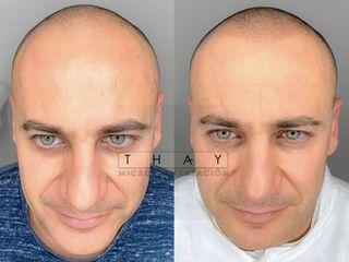 Antes y después Micropigmentacionthay