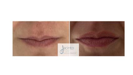 Antes y después  Aumento labios con ácido hialurónico