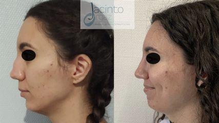 Rinoplastia - Doctor Jacinto Orgaz Molina