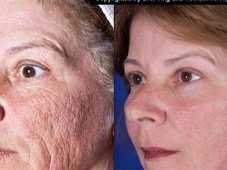Rejuvenecimiento facial-146218