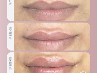 Aumento labios-740090
