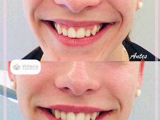 Aumento labios-740101
