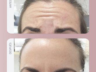Medicina estética-740103