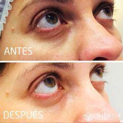 Eliminación de ojeras - Clínica Villoria