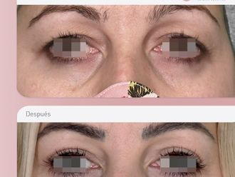 Blefaroplastia-776061
