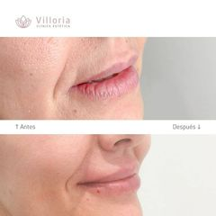 Aumento de labios - Clínica Villoria
