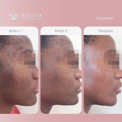 Tratamiento antimanchas - Clínica Villoria