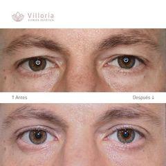 Blefaroplastia - Clínica Villoria