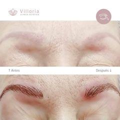 Microblading - Clínica Villoria