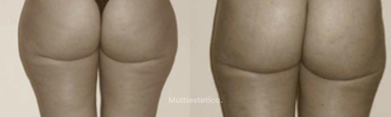 Gluteoplastia - Lipoescultura glúteo-femoral.
