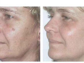 Tratamiento antimanchas-37217
