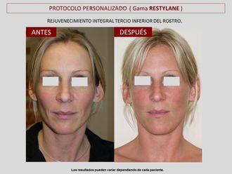 Rejuvenecimiento facial-606792